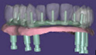 """Wrap around"" implant bridge"