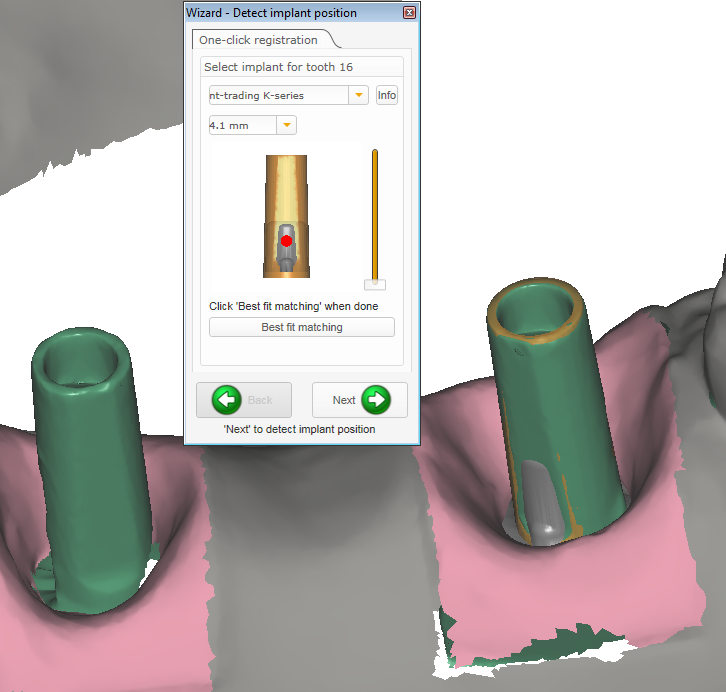 Cust abutment detect implant position svg.png