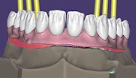 Implant Bridge with Gingiva Design and Labial Cutback