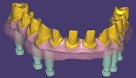 """Thimble Crown"" implant bridge"