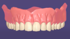 Designing a single arch denture