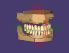 Editing Denture tooth placement