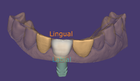 Tooth model placement