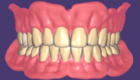 Full Denture Design